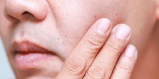Петехии: причины, симптомы, лечение
