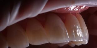 Имплантация зубов под ключ - выгода и удобство в одном